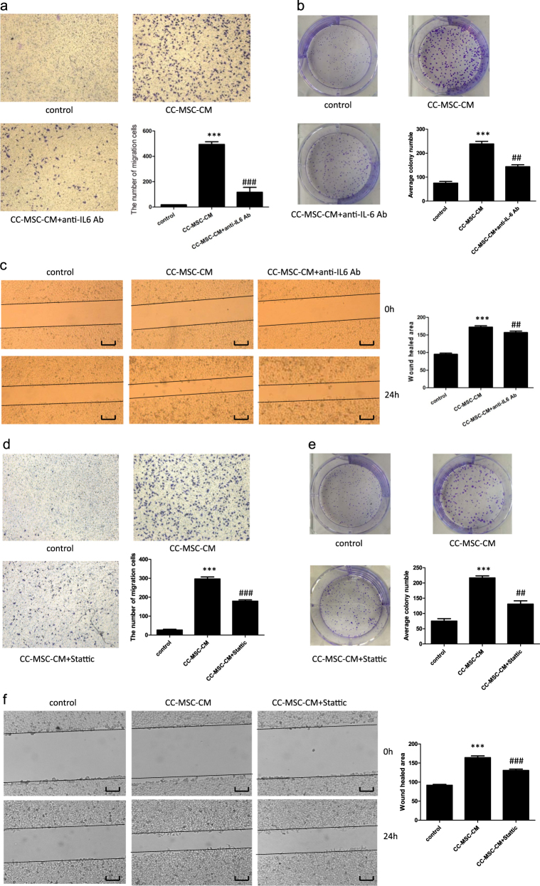 Tumor-promoting effect of CC-MSCs on SW48 cells is reduced by the addition of anti-IL-6 antibody and the inhibitor of STAT3. a Transwell migration assay of SW48 cells exposed to CC-MSC-CM with or without anti-IL-6 antibody treatment (×100). b Colony-formation assay of SW48 cells treated with CC-MSC-CM in the presence or absence of anti-IL-6 antibody. c Wound-healing assay of SW48 cells exposed to CC-MSC-CM was performed in the presence or absence of anti-IL-6 antibody (magnification, ×50; scale bar: 500 μm). d Transwell migration assay of SW48 cells exposed to CC-MSC-CM with or without the STAT3 inhibitor (Stattic) treatment (×100). e Colony-formation assay of SW48 cells treated with CC-MSC-CM in the presence or absence of the STAT3 inhibitor (Stattic). f Wound-healing assay of SW48 cells exposed to CC-MSC-CM was performed in the presence or absence of the STAT3 inhibitor (Stattic) (magnification, 50X; scale bar: 500 μm). * P