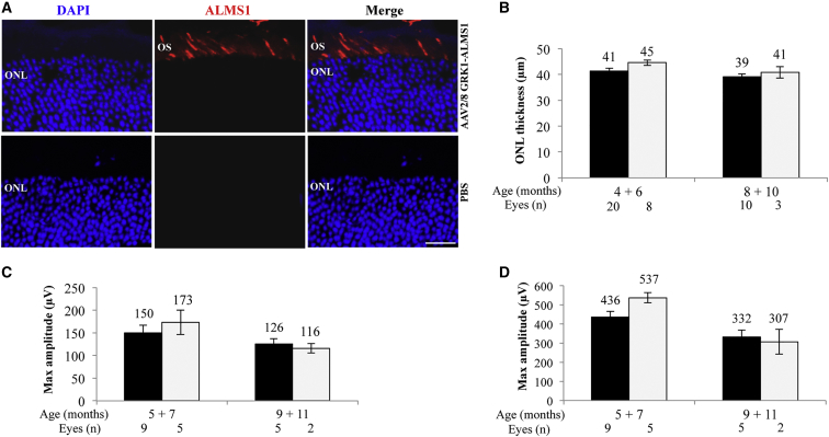 Alms1 − / − Retinal Structure and Function following Subretinal Delivery of Triple AAV Vectors (A) Immunohistochemical (IHC) analysis with anti-3xflag antibodies of retinal cryosections from C57BL/6J mice 2 months following subretinal injections of either triple AAV2/8 encoding for ALMS1 under the control of the PR-specific GRK1 promoter (top panels) or PBS (bottom panels). The pictures are representative of n = 4 injected eyes. The scale bar (20 μm) is depicted in the figure. Merge, overlay of DAPI and ALMS1. ONL, outer nuclear layer; OS, outer segment. (B) Spectral domain optical coherence tomograms (SD-OCT) analysis of Alms1 − / − mice injected subretinally with either triple GRK1- ALMS -AAV vectors (white bars) in one eye or PBS in the contralateral eye (black bars). Results are reported as means ± SE. (C and D) Electroretinographic analysis of a-wave (C) and b-wave (D) light responses of Alms1 − / − mice injected subretinally with either triple GRK1- ALMS -AAV vectors (white bars) or PBS in the contralateral eye (black bars). Results are reported as means ± SE. Light intensity of 20 cd s/m 2 (a-wave); background white light of 50 cd s/m 2 and light intensity of 20 cd s/m 2 (b-wave).