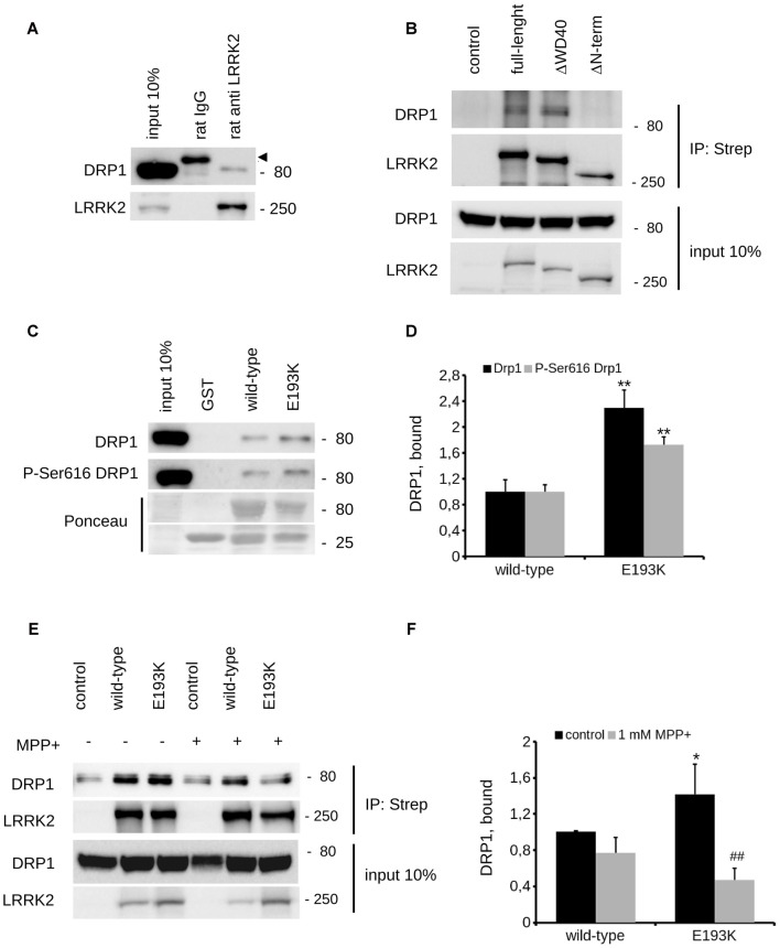 E193K variant affects LRRK2-DRP1 complex. (A) Extracts of mouse adult forebrain were incubated with anti-LRRK2 antibodies or rat IgG. The immunocomplexes were isolated with protein G-Sepharose and the samples were resolved by SDS-PAGE and analyzed by immunoblotting with anti DRP1 and anti LRRK2 antibodies. Arrowhead indicates unspecific band recognized by anti-rabbit secondary antibody. (B) We isolated on streptavidin resin strep-FLAG-LRRK2 full-length (full-length), strep-FLAG-LRRK2ΔWD40 (ΔWD40) and strep-FLAG-LRRK2ΔN–terminal (ΔN–terminal) protein from HEK293 over-expressing cells. Interacting proteins were resolved by western-blotting. (C) We performed a GST-pull down approach to explore the interactome associated to LRRK2 N-terminal Armadillo domain. GST-fusion proteins corresponding to Armadillo domain of LRRK2 WT and LRRK2 E193K (E193K) were used to retain interactors from adult forebrain lysate. The complexes were isolated with GSH-Sepharose beads, the samples were resolved by SDS-PAGE and analyzed by immunoblotting with anti DRP1 and anti P-Ser616 DRP1 antibodies. (D) We evaluated the extent of DRP1 and P-Ser616 DRP1 bound to WT and E193K Armadillo domain expressed as ratio over WT domain. Graph reports mean ± SE; n = 4; ** p