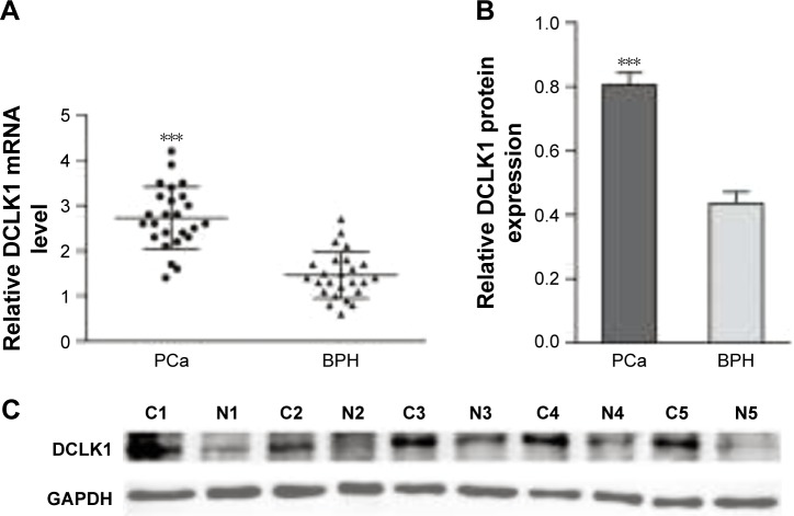 qRT-PCR and Western blot analysis of DCLK1 expression in fresh PCa (n=25) and BPH (n=25) tissues. Notes: ( A ) Relative DCLK1 mRNA level was significantly higher in PCa tissues compared with BPH. Horizontal lines represent mean with SD. ( B ) Relative protein expression level of DCLK1/GAPDH detected by Western blot was markedly increased in PCa tissues. ( C ) Representative Western blot of DCLK1 protein in five paired PCa (C) and BPH (N) tissues. Data are presented as the mean ± SD; *** P