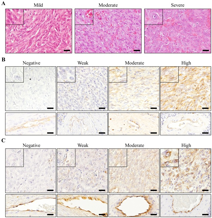 Representative figures of cellular atypia (A), <t>CD31</t> expression levels (B) and vWF expression levels (C). Inserted images are the magnified views of each figures. Rectangle images at the bottom of (B) and (C) are immunohistochemical reactivity of CD31 and vWF in normal endothelial cells in the same slides of above images. Bars=20 µ m.