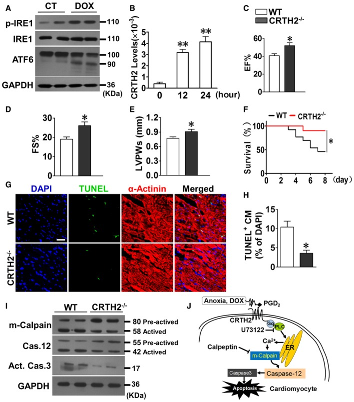 CRTH 2 deletion reduces doxorubicin‐induced cardiomyocyte apoptosis and cardiac injury in mice Western blot analysis of ER stress markers p‐IRE1 and cleaved ATF6 in mouse cardiomyocytes upon DOX (1 μmol/l) treatment. CRTH2 mRNA expression in mouse cardiomyocytes under DOX treatment. Data represent mean ± SEM. ** P = 0.00011, 12 h vs. 0 h; ** P = 0.000267, 24 h vs. 0 h (one‐way ANOVA); n = 4. Cardiac function in mice assessed by M‐mode echocardiographic analysis on day 7 after DOX treatment (20 mg/kg, i.p.). EF, ejection fraction (C); FS, fractional shortening (D); LVPWs, left ventricle posterior wall thickness at end‐systole (E). Data represent mean ± SEM. EF, * P = 0.00836, vs. WT; FS, * P = 0.00383, vs. WT; LVPWs, * P = 0.0198, vs. WT (unpaired two‐tailed t ‐test); WT, n = 15, CRTH2 −/− , n = 13. Kaplan–Meier survival curves for mice subjected to DOX treatment. * P = 0.0305, vs. WT (log‐rank test); n = 15. Representative TUNEL‐stained images of heart tissue in mice on day 7 after DOX treatment. Green, TUNEL‐positive nuclei; blue, DAPI; red, α‐actinin; scale bar, 50 μm. Quantification of TUNEL‐positive cardiomyocytes in (G). Data represent mean ± SEM. * P = 0.00278, vs. WT (unpaired two‐tailed t ‐test); n = 6. Western blot analysis of m‐calpain, caspase‐12, and <t>caspase‐3</t> in heart tissue from DOX‐treated mice. Schematic diagram of CRTH2 promoting cardiomyocyte apoptosis under ER stress through the G αq /calpain/caspase‐12 signaling pathway. Source data are available online for this figure.