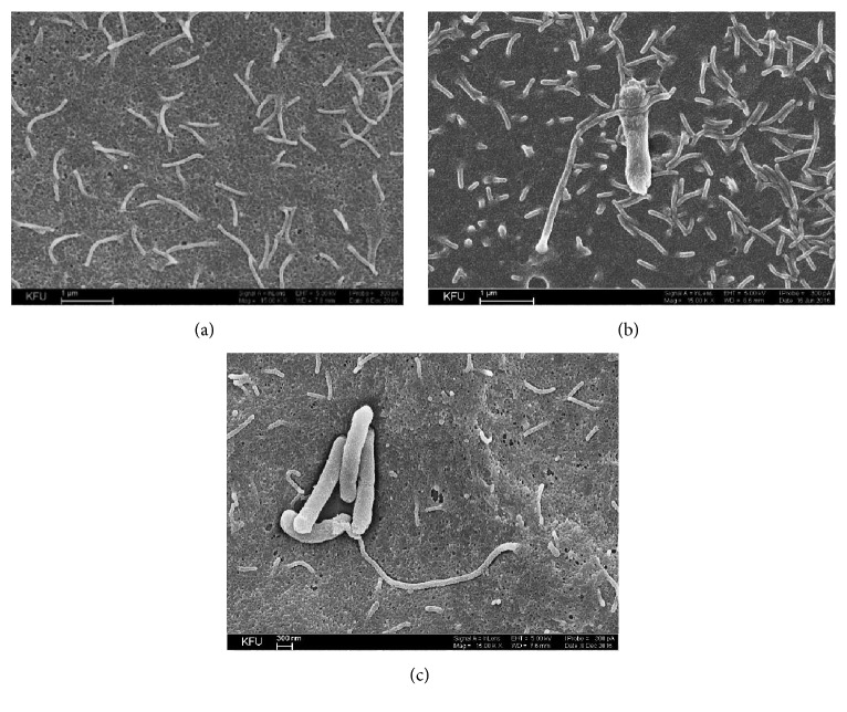 SEM-images of P. stuartii NK adhesion onto HeLa-M cells. Subconfluent HeLa-M monolayers were infected with P. stuartii NK at a ratio of 50 bacterial cells to 1 eukaryotic cell at 37°C. (a) Control (HeLa-M cells were not infected with bacteria); (b) 30 minutes of postinfection with P. stuartii NK; (c) 60 minutes of postinfection with P. stuartii NK. Magnification 15. 00 K X.