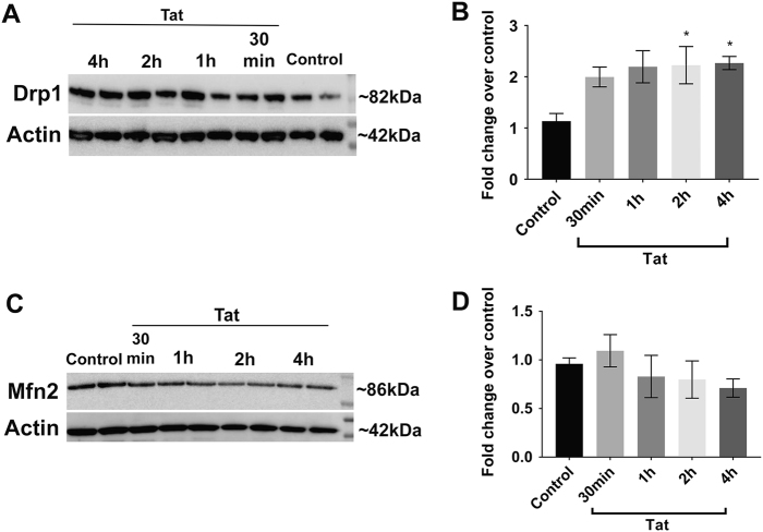 Tat promotes a time-dependent increase in Drp1, but not Mfn2 levels. Drp1 and Mfns protein levels were determined by western blot analysis in control and Tat-treated neurons. a Representative western blot analysis of cortical neuronal lysates probed with a Drp1 antibody. Blots were reprobed with beta-actin antibody. b Semi-quantification of Drp1 levels was done by densitometric analysis of the 82 kDa immunoreactive band normalized by the beta-actin (42 kDa) immunoreactivity. c Representative western blot analysis of cortical neuronal lysates probed with a Mfn2 antibody. d Semi-quantification of Mfn2 levels was done by densitometric analysis of the 86 kDa immunoreactive band normalized by beta-actin immunoreacivity. Data are the mean ± SEM of three independent experiments, normalized to control. * p