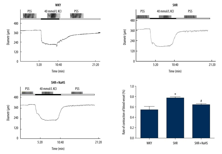 """The inhibitory effect of NaHS on the contractile response in basilar arteries (BA) induced by 40 mM KCl. We treated 9-week-old male SHR and WKY rats with NaHS (56 μmol/kg −1 ·day −1 , i.p.) or the same volume of normal saline and continued every day. At 9 weeks after NaHS injection, BA were isolated and their contractile response were determined as described in """"Materials and methods"""". Contraction of BA in response to KCl was greater in SHR than in WKY rats (* P"""