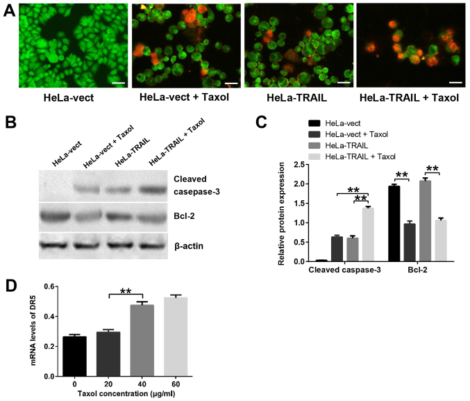 Apoptosis of HeLa-vect and HeLa-TRAIL cells treated with Taxol. (A) AO/EB-stained cells. Scale bar, 100 µm. (B) Western blot analysis of cleaved caspase-3 and Bcl-2 protein expression. (C) Quantification of cleaved caspase-3 and Bcl-2 protein levels from three experiments. (D) DR5 mRNA levels in HeLa cells treated with different concentrations of Taxol. Data are from three separate experiments. Data are presented as the means ± SD. **P