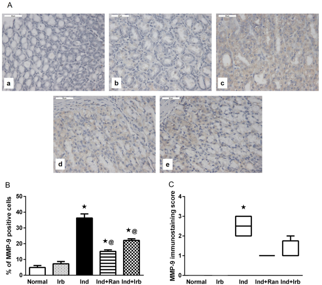 Effect of irbesartan on changes in matrix metalloproteinase-9 expression induced by indomethacin in rat gastric mucosa. ( A ) Immunohistochemical staining of <t>MMP-9</t> in gastric sections (X 400). (a) Normal group showed no expression of MMP-9. (b) Irb group showed no expression of MMP-9. (c) Ind group showed strong expression of MMP-9 indicated by brown staining. (d) Ind + Ran group showed mild expression of MMP-9. (e) Ind + Irb group showed mild expression of MMP-9. ( B ) Quantification of MMP-9 staining as area percentage of immunopositive cells to the total area of microscopic field across 6 fields. Each bar with vertical line represents the mean ± S.E.M. of 6 fields. *vs normal, @ vs Ind (one-way ANOVA followed by Tukey's multiple comparisons test; p