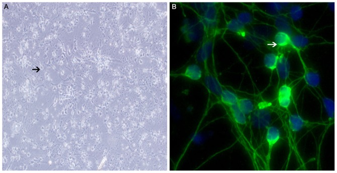 Micrographs of SGNs. (A) Bipolar neurons present in cultured SGNs (arrows; magnification, ×100); (B) SGNs stained with <t>anti-neurofilament</t> protein, which is used for the identification of SGNs; green signals can be observed in the membrane (arrow; magnification ×200) rather than in the nuclei. SGNs, spiral ganglion neurons.