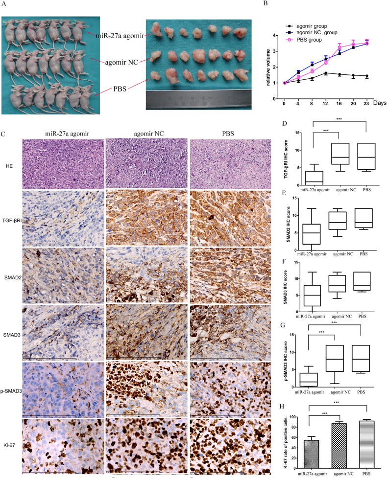 miR-27a agomir inhibits the growth of cervical cancer xenografts in vivo. Mice harboring subcutaneous tumors derived from HeLa cells received intratumoral injection of PBS, agomir NC, or miR-27a agomir ( N = 7/group). a The tumor size in the agomir group is significantly smaller than the NC group and the PBS group (23 days after inoculation). b The curves of relative tumor volume show a significantly slower tumor growth in the agomir group compared with controls. c HE staining and immunohistochemical detection of TGF-βRI, SMAD2, SMAD3, p-SMAD3, and Ki-67 in the xenografts (bar, 200 µm). d – h Quantification of the immunohistochemistry results. *** P