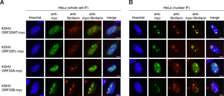 KSHV ORF20 isoforms localize predominantly to the nuclei and nucleoli. (A-B) HeLa cells were transfected with the indicated plasmid and seeded onto coverslips. 48 h post transfection, (A) coverslips were fixed directly in 4% paraformaldehyde in PBS (PFA) for whole cell immunofluorescence. (B) For nuclear immunofluorescence, coverslips were incubated in cold 1% NP-40 extraction buffer for 5 min to remove the cytoplasm before PFA fixation. (A-B) All samples were then processed for anti-myc (green) and anti-fibrillarin (red) immunofluorescence. Nuclei were counterstained with Hoechst (blue). Images are representative of three independent experiments. Scale bar = 10 μm.