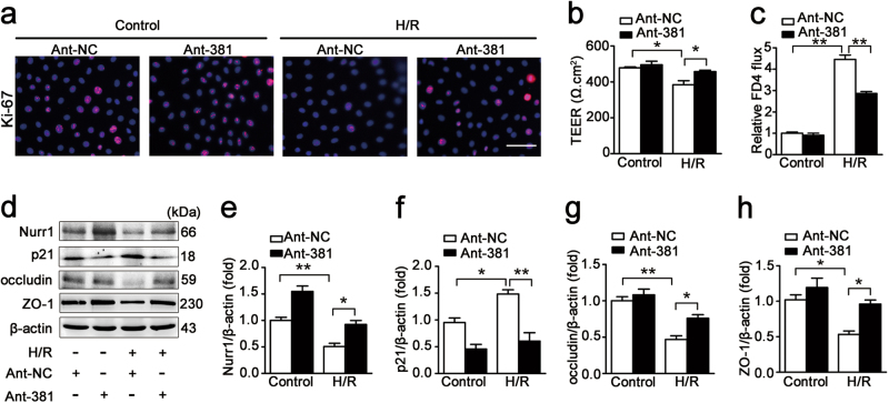 miR-381-3p inhibition promotes intestinal epithelial restoration after H/R injury. a Immunofluorescence staining for the Ki-67 antibody in IEC-6 cells for proliferation analysis. IEC-6 cells were infected with the ant-381 or the ant-NC for 36 h and then incubated under H/R conditions for 6/6 h, respectively. Scale bar = 100 μm, n = 6. b and c Caco-2 cells were transfected with the ant-381 or the ant-NC for 36 h and then exposed to hypoxic conditions for 12 h before being exposed to normoxic conditions for 6 h. b Effect of the ant-381 on TEER, n = 3. c Changes in FITC-dextran intestinal epithelial permeability in response to the ant-381, n = 3. d-h IEC-6 cells were infected with the ant-381 or the ant-NC for 36 h and then incubated under H/R conditions for 6/6 h, respectively. Representative western blot showing nurr1, p21, occludin, ZO-1 protein expression, n = 3. * P
