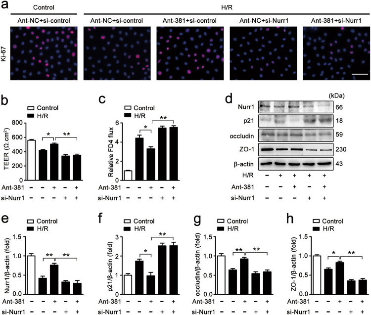 miR-381-3p inhibition provides protective effects by targeting nurr1. a Immunofluorescence staining for the Ki-67 antibody in IEC-6 cells for proliferation analysis. IEC-6 cells were infected with si-Nurr1 or si-control, transfected with the ant-381 or the ant-NC, and then incubated in H/R conditions for 6/6 h, respectively. Scale bar = 100 μm, n = 6. b and c Caco-2 cells were co-transfected with ant-381, si-Nurr1 or the corresponding negative control, and then exposed to H/R conditions for 12/6 h, respectively. b Effect of the ant-381 on TEER, n = 3. c Effect of the ant-381 on FITC-dextran intestinal epithelial permeability, n = 3. d-h IEC-6 cells were co-transfected with ant-381, si-Nurr1 or the corresponding negative control, and then incubated in H/R for 6/6 h, respectively. Representative western blot showing nurr1, p21, occludin, ZO-1 protein expression, n = 3. * P