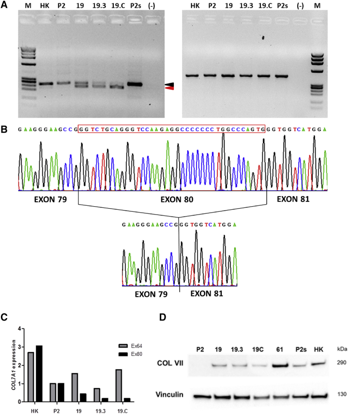 <t>COL7A1</t> Gene Expression Analysis in Frame-Restored Clones (A) RT-PCR analysis for detection of COL7A1 transcripts using primers in exons 78 to 84. A 240/241-bp band (black arrowhead) corresponding to wild-type/c.6527insC unedited transcripts was amplified from all RNA samples (left). In addition, a 205-bp band (red arrowhead) corresponding to exon 80-lacking transcripts was found in clones 19, 19.3, and 19.C. M, IX molecular weight marker; HK, healthy human keratinocytes; P2, patient keratinocytes; P2s, healthy heterozygous patient sibling; (−), negative control without cDNA. GAPDH expression was analyzed as a loading control (right). (B) TA-cloned RT-PCR products from clones 19, 19.3, and 19.C revealed the presence of transcripts originating from the unedited pathogenic allele (upper chromatogram) and transcripts lacking the exon 80-encoded sequence (lower chromatogram). Black lines depict exon boundaries. Chromatograms corresponding to clone 19.C are shown. (C) Real-time qPCR quantification of COL7A1 expression using Taqman probes specific for all COL7A1 transcripts (Ex64) and exon 80-containing transcripts (Ex80). (D) Western blot analysis of C7 expression. P2, patient 2 keratinocytes; 19, 19.3, 19.C, clones from P2 carrying the 114-bp deletion allele; 61, clone from P2 carrying the ΔG 1-bp deletion allele; P2s, healthy heterozygous sibling keratinocytes; HK, healthy human keratinocytes.