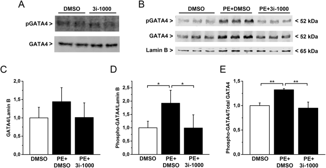 The effect of small molecule 3i-1000 on GATA4 protein levels and phosphorylation in vitro in neonatal rat cardiomyocytes. ( A ) Compound 3i-1000 at concentration of 50 µM had no influence on baseline levels of nuclear GATA4 or Ser-105 phosphorylation of GATA4 (pGATA4) protein. ( B–E ) Compound 3i-1000 (50 µM) inhibited the elevation of GATA4 and phospho-GATA4 protein levels produced with PE. The experiment was repeated three times, and the results presented here are an average of three parallel samples ± SD. The original whole blot images are presented in Supplementary Figure S1 . * p