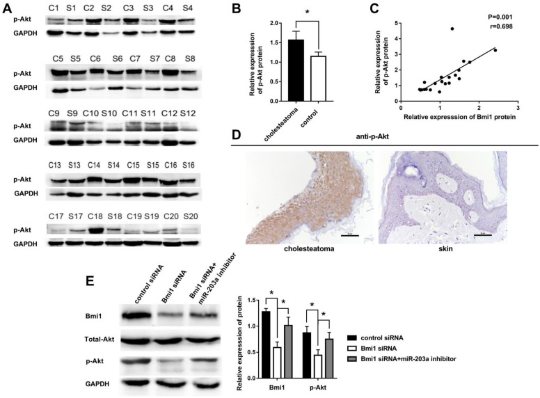 Overexpression of p-Akt is positively correlated with Bmi1 in cholesteatoma. (A) Western blot analysis of p-Akt, total Akt, and Bmi1 expression in 20 paired cholesteatoma and retroauricular skin specimens (C, cholesteatoma; S, retroauricular skin). (B) Statistical analysis of p-Akt expression from 20 paired cholesteatoma and retroauricular skin specimens. * P