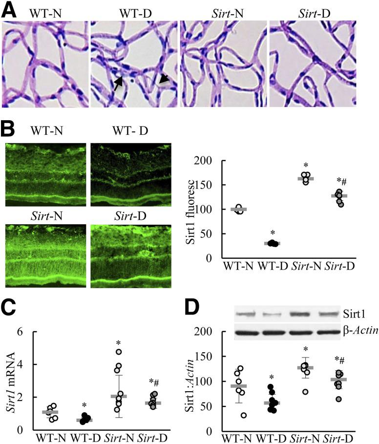 Effect of Sirt1 overexpression on retinal capillary cell damage in diabetes. Trypsin-digested retinal microvessels from <t>C57BL/6J</t> WT and Sirt1 -overexpressing mice, which had diabetes for ∼8 months, were stained with TUNEL. TUNEL-positive cells were counted throughout the entire retinal vasculature. The microvasculature was then stained with periodic acid Schiff–hematoxylin, providing representative microvasculature ( A ). The arrowhead indicates an acellular capillary, and the arrow points to a pericyte ghost. B : Sirt1 expression was quantified in the retinal cryosections by immunofluorescence (fluoresc) staining using DyLight 488–labeled (green) secondary antibodies. Retinal microvessels prepared with the hypotonic shock method were analyzed for Sirt1 gene expression by SYBR green–based quantitative PCR ( C ) and protein expression by Western blotting ( D ). Values are presented as the mean ± SD ( n = 5–7 mice/group). * P