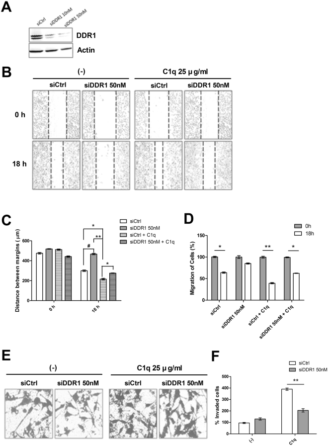 Knockdown of DDR1 attenuated the C1q-induced migration and invasion of HepG2 cells. Evaluation of DDR1 protein levels by western blotting after transfection for 36 h with scrambled (siCtrl) or DDR1-specific siRNAs ( A ). Control or DDR1 siRNA-transfected cells were cultured in 48-well plastic plates and allowed to adhere. A linear wound was then created in each well using a pipette and cells were treated with or without C1q to initiate migration ( B ). Transfected cells were cultured in transwell inserts in the presence or absence of C1q for 18 h and invading cells were counted as described in Materials and Methods ( E ). Bar diagrams representing migration distances ( C ), and counts of migrating cells ( D ) and invading cells ( F ). * P