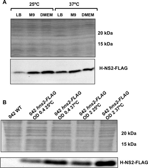H-NS2-FLAG expression is upregulated in DMEM and M9 minimal medium and when cells enter the stationary growth phase. (A) Immunodetection of H-NS2-FLAG in cell extracts from E. coli strain 042 growing at 25°C and 37°C in LB, M9 minimal medium, and DMEM at the onset of the stationary phase (OD 600 of 2.0). (B) Immunodetection of H-NS2-FLAG in cell extracts from E. coli strain 042 growing in LB medium at 25°C and 37°C both at the exponential and early stationary growth phases (OD 600 of 0.4 and 2.0, respectively). Experiments were repeated three times. The results of a representative experiment are shown.