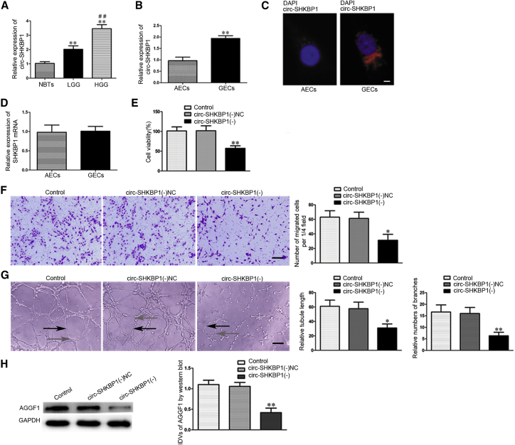 circ-SHKBP1 Expression in Glioma Microvessels and GECs, and Knockdown of circ-SHKBP1 Inhibited the Angiogenesis of U87 Glioma and the Expression of AGGF1 (A) Normal brain microvessels and glioma microvessels were respectively captured from NBTs and glioma tissues using laser capture microdissection. Relative expressions of circ-SHKBP1 in normal brain microvessels or glioma microvessels were shown. Data represent means ± SD (n = 5, each group). **p