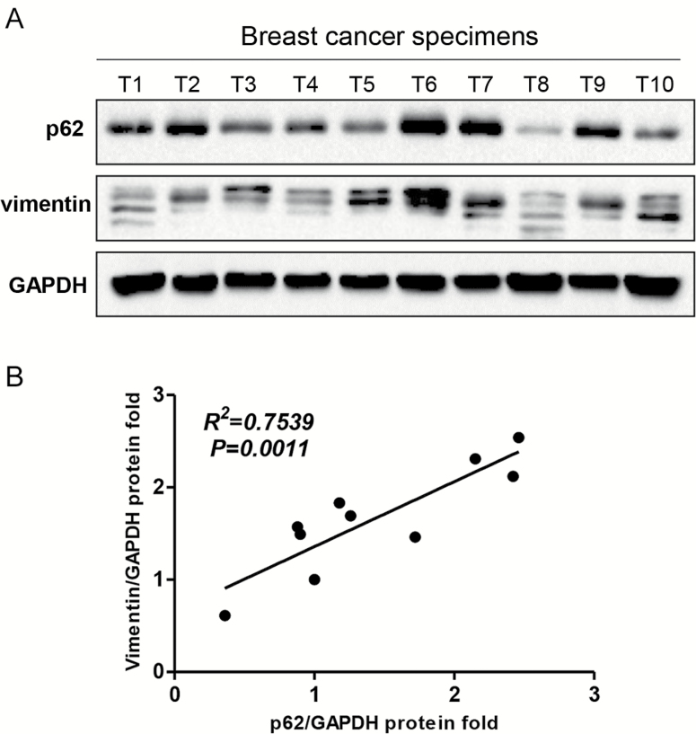 p62 expression is positively correlated with vimentin level in breast cancer specimens. ( A ) Both the p62 and vimentin protein expression in breast cancer specimens ( n  = 10; T: tumour) were subjected to western blot analysis. ( B ) Both the p62 and vimentin expression levels were normalized to relative glyceraldehyde 3-phosphate dehydrogenase and linear regression analysis was shown.  R 2  = 0.7539,  P  = 0.0011.