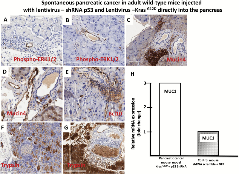 Progression of pancreatic cancer in adults wild-type mice injected with lentivirus expressing, shRNA p53 and Kras G12D , directly into the pancreas. (A) and (B) Activated Erk1/2 pancreatic cancer in adult wild-type mice with lentivirus expressing, shRNA p53 and Kras G12D , injected directly into the pancreas. (A) and (B) Immunohistochemical staining for activated Erk1/2 in the pancreatic tissues section cancer model. The brown color indicates immunoreactivity for activated (phosphorylated) Erk1/2. (C) and (D) Immunohistochemical staining for mucin 4 (brown) in pancreatic tissue section from the mouse cancer model. (E) Immunohistochemical staining for Bcl10 (brown) in the pancreatic tissue section from the mouse cancer model. (F) and (G) Immunohistochemical staining for trypsin (brown) in the pancreatic tissue section from the mouse cancer model. (H) Quantitative reverse transcription–polymerase chain reaction demonstrating increased mRNA level of MUC1 in pancreatic tissues from the mouse cancer model compared with control group.