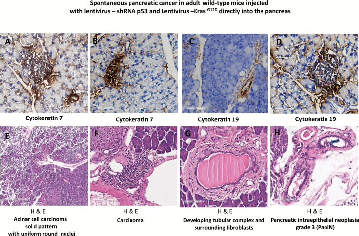 Progression of pancreatic cancer in adult wild-type mice injected with lentivirus expressing, shRNA p53 and Kras G12D , directly into the pancreas. (A) and (B) Immunohistochemical staining for cytokeratin 7 (brown) in adult wild-type mice with lentivirus expressing, shRNA p53 and Kras G12D , injected directly into the pancreas. (C) and (D) Immunohistochemical staining for cytokeratin 19 (brown) in adult wild-type mice with lentivirus expressing, shRNA p53 and Kras G12D , injected directly into the pancreas. (E) H E stained demonstrated acinar cell carcinoma solid pattern with uniform round nuclei. (F) H E stained of pancreatic carcinoma. (G) H E stained demonstrated developing tubular complex and surrounding fibroblasts. (H) H E stained section showed the formation of PanIN grade 3. H E = Hematoxylin and eosin stain.