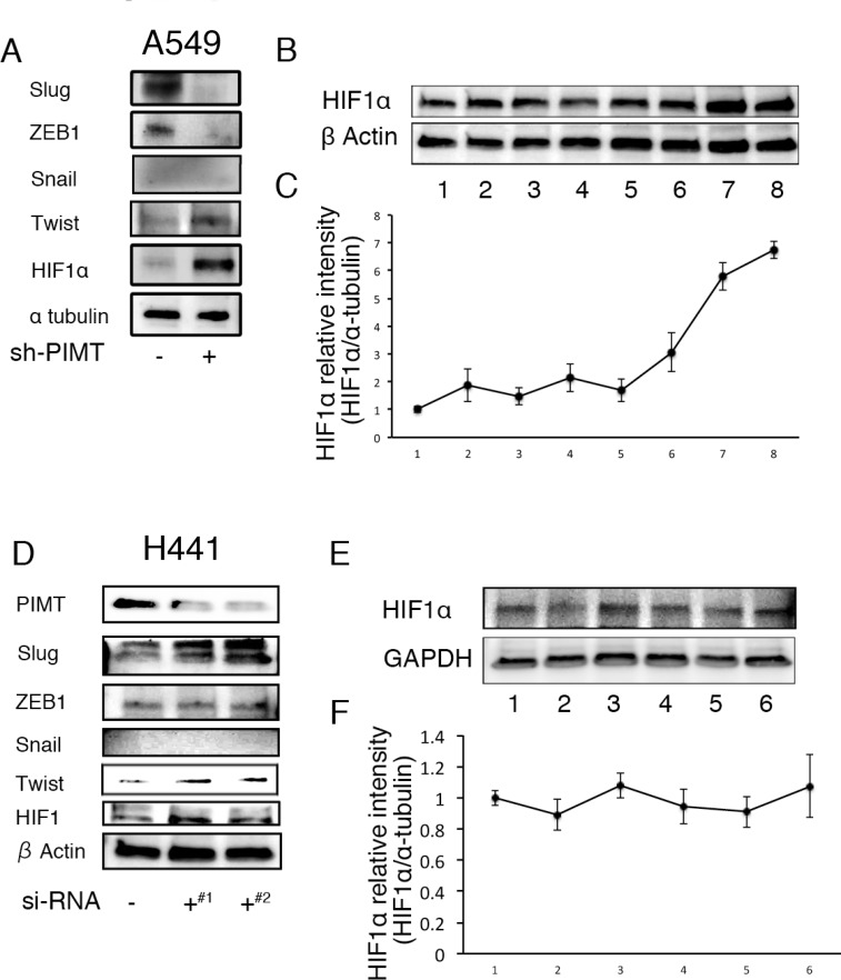 Increased expression of HIFα and/or Twist in A549 and H441 cells induced by the inhibition of PIMT and Thapsigargin ( A ) Immunoblotting of Slug, ZEB1, Snail1, Twist, and HIF1α in A549 sh-PIMT and sh-control cells. ( B, C ) Immunoblotting and relative intensity of HIF1α in A549 cells treated with Tg. ( D ) Immunoblotting of Slug, ZEB1, Snail1, Twist, and HIF1α in si-control cells and si-PIMT H441 cells. ( E, F ) Immunoblotting and relative intensity of HIF1α in H441 cells treated with Tg. #1 and #2 indicates si-RNA of J-010000-05-0002 and J-010000-07-0002, respectively.