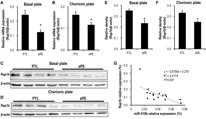 Expression pattern of Rap1b in preeclamptic placentas. (A,B) Real-time PCR to measure the mRNA expression of Rap1b in basal plate (A) and chorionic plate (B) of placentas from severe preeclamptic patients (sPE, n = 8) and gestational week-matched preterm labor (PTL, n = 8). (C–F) Western blotting to measure the protein level of Rap1b in basal plate (C) and chorionic plate (D) of the placentas from PTL and sPE patients, each of the lanes stood for one patient. (E) and (F) represent the statistical results of (C,D) , respectively. The correlation between the expression of miR-518b and Rap1b in placentas is shown as (G) . Data are presented as mean ± SEM. * P