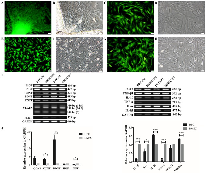 Isolation and cultivation of DPCs and BMSCs from GFP-transgenic rats, and expression of spinal cord injury repair-associated cytokines. (A-G) Isolation and cultivation of DPCs and BMSCs from GFP-transgenic rats. (A) Direct GFP-fluorescence and (B) phase-contrast images demonstrated the morphological characteristics of primary DPCs. (C and D) DPCs at passage 6. (E) Direct GFP-fluorescence and (F) phase-contrast images revealed the morphological characteristics of BMSCs. (G and H) BMSCs at passage 6. (I) Semi-quantitative RT-PCR analysis was performed to confirm the expression of NTFs, angiogenic factors and inflammation-associated cytokines in DPCs. (J) RT-qPCR analysis further revealed relative expression levels of NTFs, angiogenic factors and inflammation-associated cytokines in DPCs. *P