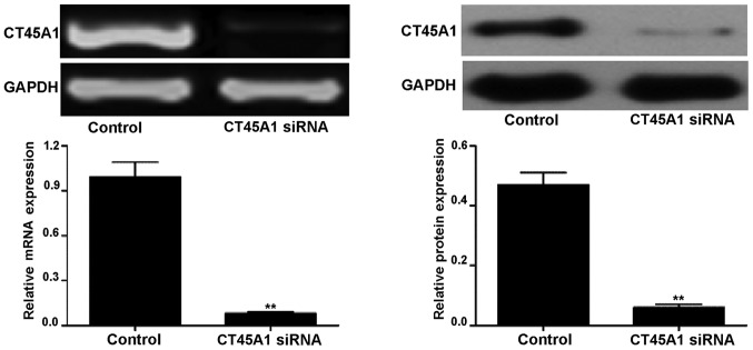 CT45A1 mRNA and protein levels in A549 cells transfected with CT45A1 siRNA and negative control were determined by semi-quantitative reverse transcription polymerase chain reaction (left panel) and western blotting (right panel), respectively. **P