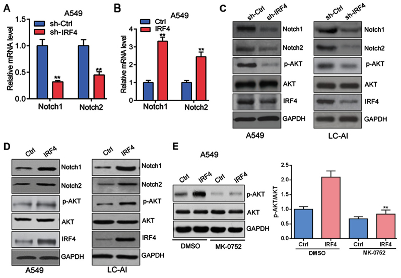 IRF4 activates Notch-Akt signaling in NSCLC cells (A) IRF4 knockdown inhibits Notch1 and Notch2 expression in A549 cells. A549 cells were infected with lentivirus expressing sh-Ctrl or sh-IRF4 vectors for 48 h. qRT-PCR was performed to analyzed mRNA level. **P