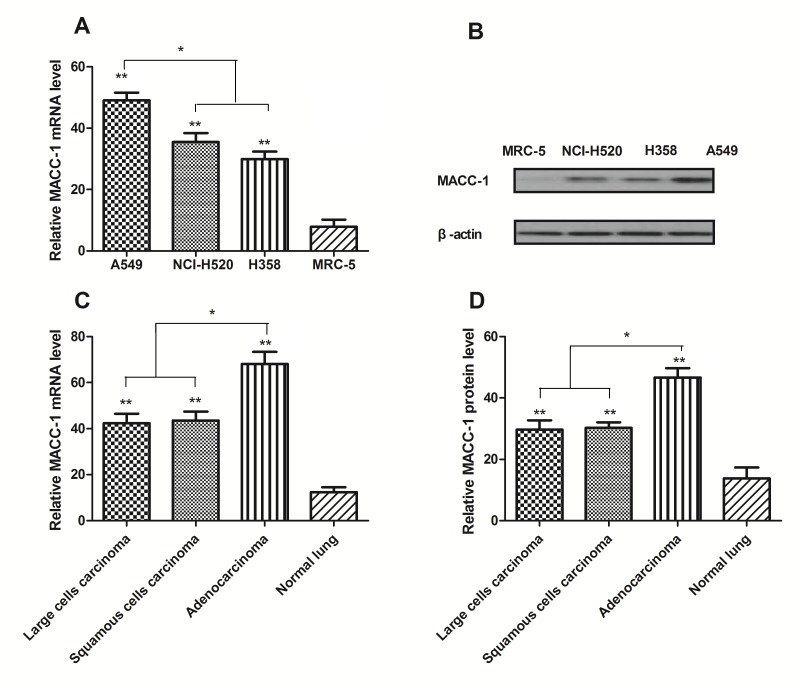Expression of MACC-1 in non-small-cell lung cancer cells and tissues. (A) RT-qPCR and (B) western blot analysis of MACC-1 mRNA and protein expression levels in NCI-H520, A549 and H358 lung cancer cells, compared with MRC-5 normal lung cells. (C) RT-qPCR and (D) western blot analysis of the mRNA and protein expression level of MACC-1 in large cell carcinoma, squamous cell carcinoma, adenocarcinoma and normal lung tissues. Data are presented as the mean ± standard error of mean, from triplicate samples. **P