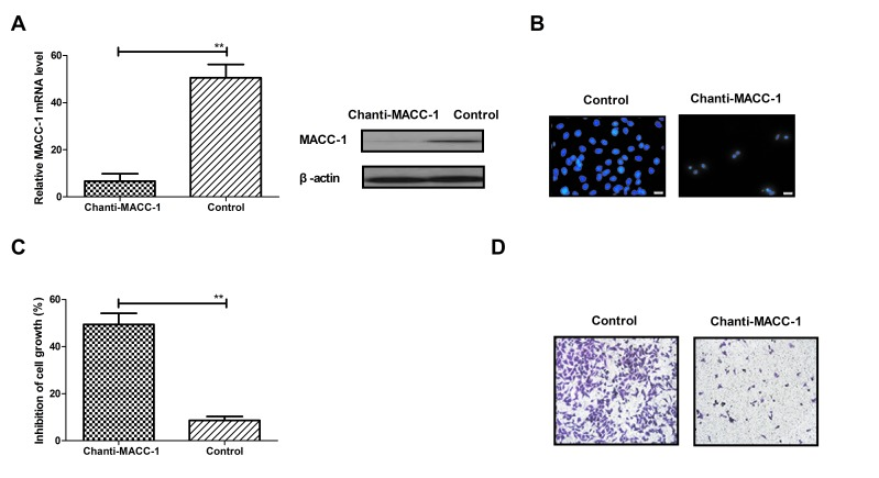 Inhibitory effects of Chanti-MACC-1 on MACC-1 expression and non-small-cell lung cancer cell growth in vitro . (A) MACC-1 mRNA expression levels were decreased in A549 cells following treatment with Chanti-MACC-1. (B) MACC-1 expression alterations in A549 cells transfected with Chanti-MACC-1, determined via immunofluorescence. (C) MTT assays analyzed the inhibitory effects of Chanti-MACC-1 on A549 cells. (D) Migration analysis was performed to detect the efficacy of Chanti-MACC-1 on A549 cells. Student t-tests revealed a significant difference. **P
