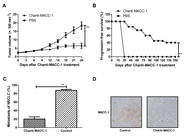 Therapeutic and metastasis-inhibitory effects of Chanti-MACC-1 in A549-bearing mice. (A) Tumor volume was analyzed following Chanti-MACC-1 treatment in a 24-day short term observation. (B) Long-term survival probability was performed in a 150-day observation between Chanti-MACC-1 and PBS treatment groups. (C) NSCLC metastasis was analyzed between Chanti-MACC-1 and PBS treatment animals. (D) MACC-1expression was analyzed via histological staining in tumors following treatment with Chanti-MACC-1. Student's t-test revealed a significant effect. *P