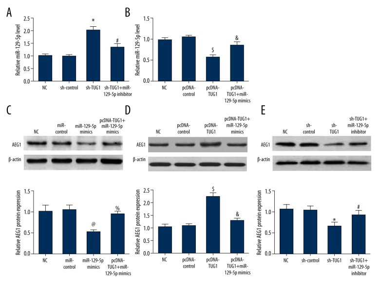 The interaction among TUG1, miR-129-5p, and AEG1 in A375 cells. ( A, B ) Silencing of TUG1 promoted the expression of miR-129-5p, but conversely, upregulation of TUG1 depressed the expression of miR-129-5p. ( C ) The transfection of miR-129-5p mimics suppressed the expression of AEG1 in A375 cells, but the cotransfection of miR-129-5p mimics and pcDNA-TUG1 reversed the inhibiting function of miR-129-5p on the expression of AEG1 in A375 cells. ( D ) High expression of TUG1 enhanced AEG1 expression, but the cotransfection of miR-129-5p mimics with pcDNA-TUG1 alleviated the promoting function of pcDNA-TUG1 on the expression of AEG1 in A375 cells. ( E ) Silencing of TUG1 distinctly inhibited the expression of AEG1, but miR-129-5p inhibitors attenuated the inhibitory function of sh-TUG1 on the expression of AEG1 in A375 cells. * p