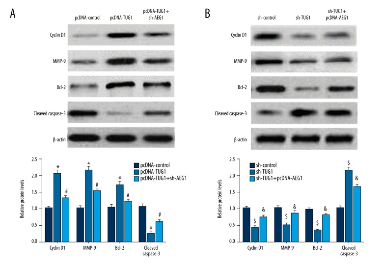 The effect of TUG1 on the expression of proteins involved in cell proliferation, cell cycle, and cell apoptosis via regulating the AEG1 level. ( A ) Upregulation of TUG1 enhanced Bcl-2, MMP-9, and cyclin D1 expression, and depressed the expression of cleaved caspase 3. Sh-AEG1 plasmids reversed the function of pcDNA-TUG1 in these protein expressions. ( B ) Downregulation of TUG1 inhibited the expression of Bcl-2, MMP-9, and cyclin D1, and elevated the level of cleaved caspase 3, but the function of sh-TUG1 was abrogated by the cotransfection of pcDNA-AEG1 in A375 cells. * p