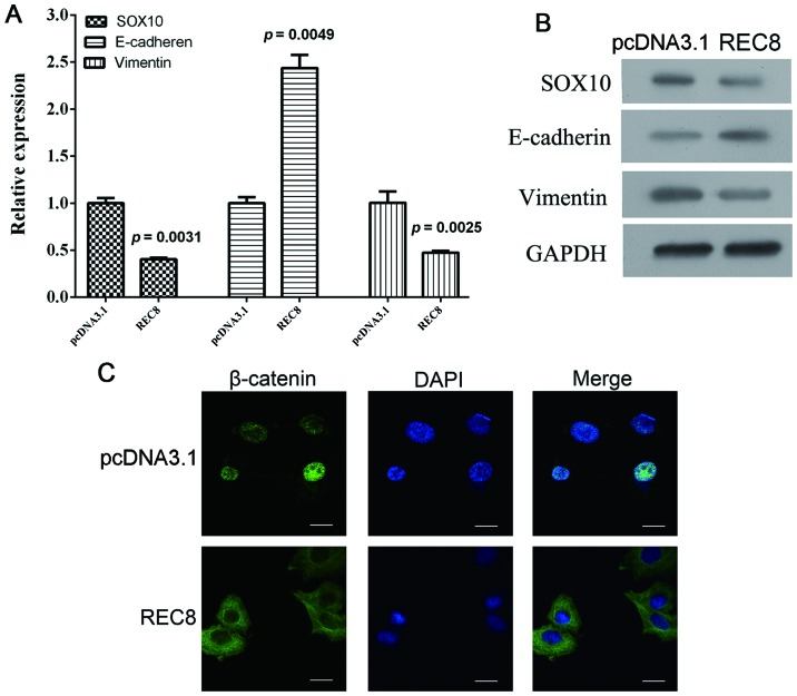 EMT is inhibited by REC8 overexpression. Gastric cancer cells BGC823 were transiently transfected with REC8 overexpression plasmid. (A) The mRNA expression levels of EMT markers (SOX10, E-cadherin and vimentin) were assessed using qRT-PCR. (B) The protein levels of EMT markers (SOX10, E-cadherin and vimentin) were assessed using western blotting. (C) The location of β-catenin in gastric cancer cells was assessed using immunofluorescence assay (magnification, ×400).