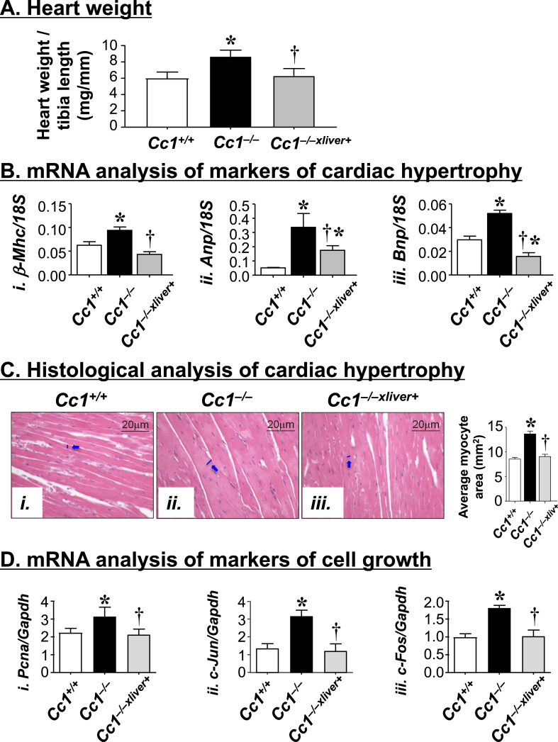 Cardiac hypertrophy analysis. (A) Hearts were removed from male mice (6 month-old, n = 5/genotype), and their weight was normalized to tibial length as a measure of cardiac hypertrophy. (B) <t>qRT-PCR</t> analysis of mRNA of markers of hypertrophy in heart homogenates. These include β-Mhc ( i ), Anp ( ii ) and Bnp ( <t>iii</t> ) (n = 5/genotype in triplicate). (C) H E stain of heart sections from mice (3 sections/mouse). In the accompanying graph, the average myocyte area was quantitated under the microscope at 20× magnification. (D) mRNA analysis of markers of cell proliferation in heart homogenates. These include Pcna ( i ), c-Jun ( ii ), and c-Fos ( iii ). Analysis was performed relative to Gapdh and expressed as mean ± SEM (n = 5/genotype in triplicate). In (A, B and D), values are expressed as mean ± SEM. * P ≤ 0.05 versus Cc1 +/+ and † P ≤ 0.05 Cc1 −/−xliver + versus Cc1 −/− mice.