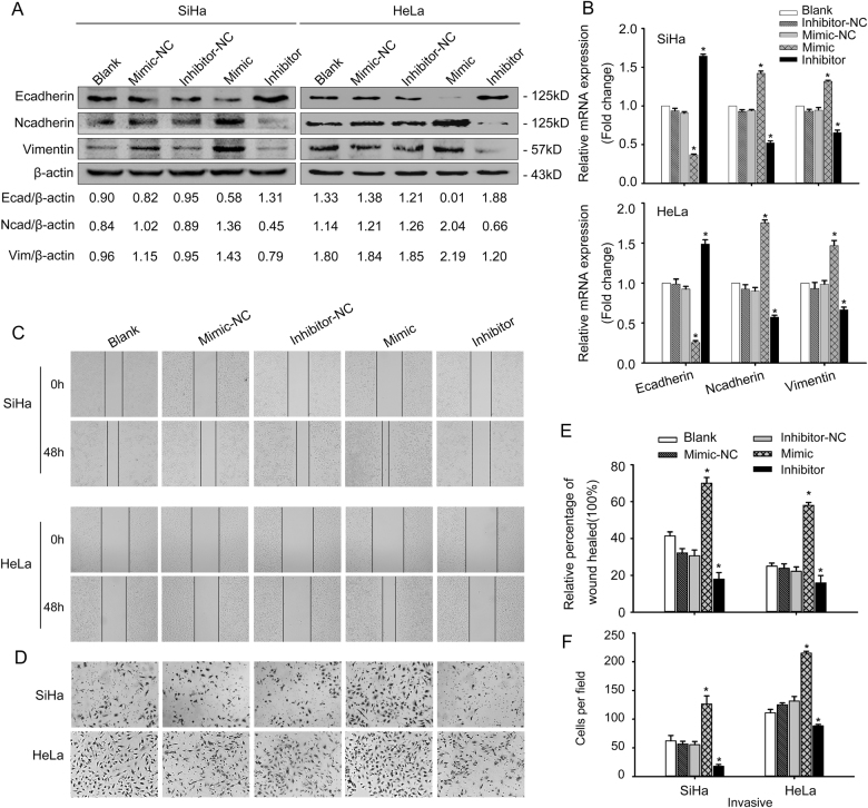 miR-221-3p promoted EMT in vitro a SiHa and HeLa cells were transfected with miR-221-3p mimic, miR-221-3p inhibitor, miR-221-3p mimic-nc, and miR-221-3p inhibitor-nc. Western blotting analysis of E-cadherin, N-cadherin, and Vimentin was performed of the five groups in SiHa and HeLa cells. β-actin was used as loading control. b qRT-PCR analysis of E-cadherin, N-cadherin, and Vimentin of the five groups in SiHa and HeLa cells. c Wound-healing assay of the five groups in SiHa and HeLa cells. d Boyden chamber assay of the five groups in SiHa and HeLa cells. e Cell migration was quantified as percentage of wound-healed area. f Average number of invading cells per field from three independent experiments. Data represent means ± SD of five randomly selected areas. * p