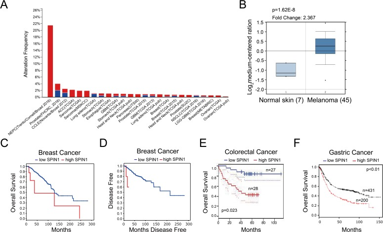 High expression of SPIN1 is detected in multiple cancers and associated with poor prognosis in cancer patients. ( A ) TCGA database was utilized, and the data were modified from the cBioPortal for Cancer Genomics ( http://www.cbioportal.org/ ). ( B ) The expression profile of SPIN1 in cancers and normal tissues was searched in Oncomine Gene Browser ( http://www.oncomine.org/ ). The results were from Talantov Melanoma database. Seven cases of normal skin and 45 cases of melanoma were analyzed in this figure. Correlation between SPIN1 upregulation and tumor stage, poorer prognosis or treatment resistance is not clear. ( C and D ) Overexpression of SPIN1 is correlated with overall survival and disease-free survival in breast cancer ( http://www.cbioportal.org/ ), although the sample number of high SPIN1 patients is small and more samples are desired. ( E ) SPIN1 overexpression was associated with poor prognosis in colorectal cancer patients in an expression profile study from GSE17537 ( http://www.PrognoScan.org/ ). ( F ) High expression of SPIN1 was correlated with poor overall survival in gastric cancer patients ( http://www.kmplot.com ).