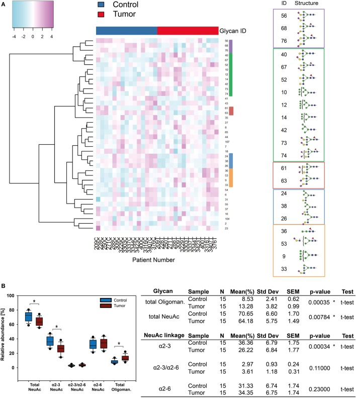 N -glycosylation changes in squamous cell carcinoma (SCC). (A) Supervised hierarchical cluster analysis of healthy and tumor skin. Rows display each of the 15 patient glycan data (T, tumor tissue; C, healthy control). Columns indicate the N -glycan ID. Five clusters can be observed: in healthy tissue N -glycans with α2-3 linked N -acetylneuraminic acid (NeuAc) appeared to be present in increased levels whereas α2-6-NeuAc and oligomannose N -glycan levels were higher in tumor tissue. (B) Statistical evaluation of sialylated and oligomannose N -glycans uncovered significant changes [ p ≤ 0.04, using a t -test, indicated by an asterisk (*)]. Oligomannose N -glycans were upregulated whereas α2-3 linked NeuAc carrying N -glycans were down regulated in SCC.