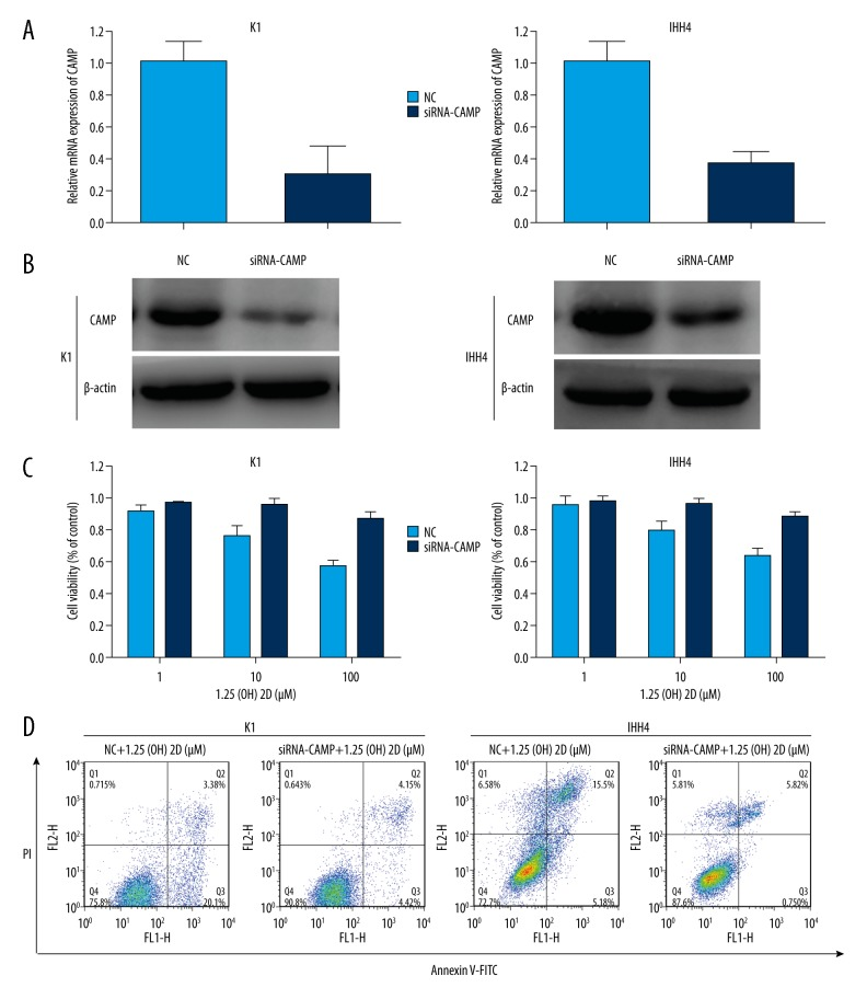Knockdown of cathelicidin antimicrobial peptide (CAMP) expression can reverse the proliferation and apoptosis caused by 1,25(OH)2D3. ( A ) Relative expression of CAMP after transfecting CAMP siRNA into K1 and IHH4 cells was analyzed by qRT-PCR and normalized to GAPDH expression. ( B ) Expression of CAMP protein was measured, and beta-actin protein was used for normalization after treatment with only 1,25(OH)2D3 or CAMP siRNA plus 1,25(OH)2D3 for 48 hours. ( C ) CAMP siRNA reduces the inhibition of cell proliferation caused by 1,25(OH)2D3. ( D ) CAMP siRNA reverses the apoptosis caused by 1,25(OH)2D3. The 1,25(OH)2D3 concentration in these experiments was 100 μM.