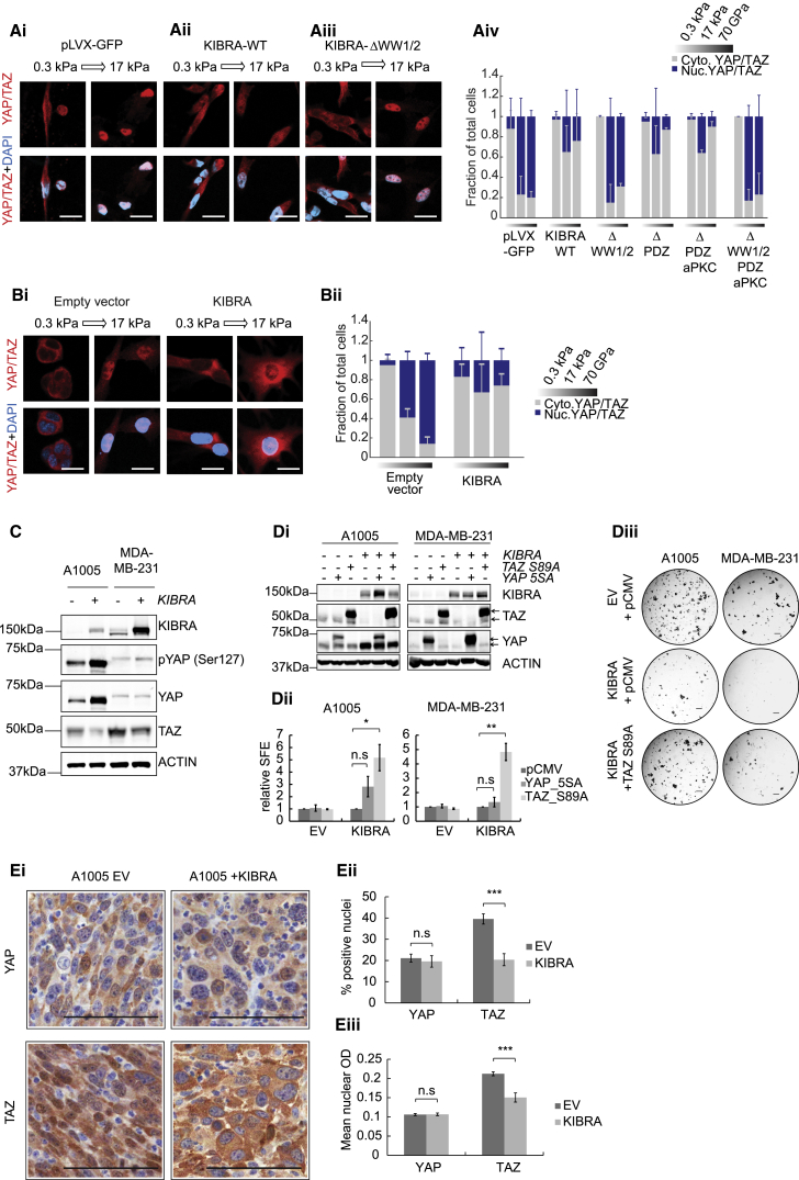 Anti-tumorigenic Effects of KIBRA Are Associated with a Reduction in TAZ Protein Levels and Inhibition of TAZ Nuclear Localization (Ai–Aiii) Subcellular localization of YAP/TAZ in MDA-MB-231 cells expressing wild-type KIBRA (KIBRA-WT), ΔWW1/2-KIBRA, or control (pLVX-GFP) in response to increasing matrix tension (0.3 to 17 kPa). Scale bars, 20 μm. (Aiv) Quantification of nuclear to cytoplasmic YAP/TAZ ratios under conditions of soft (0.3 kPa) or stiff (17 kPa) matrix or a collagen-coated glass coverslip (70 GPa) (n = 3, mean ± SD). (Bi and Bii) Representative images and quantification of YAP/TAZ localization in A1005 cells in response to matrix tension as in (A). (C) Western blot showing YAP phosphorylation and TAZ protein levels in MDA-MB-231 and A1005 cells with or without KIBRA. (Di) Western blots confirming transfection of constitutively active YAP or TAZ in A1005 and MDA-MB-231 cells with KIBRA. The empty pCMV vector is a negative control. The arrows indicate tagged (top) and endogenous (bottom) proteins. (Dii) Quantification of SFE relative to empty vector for cells in (Di) (n = 3, ± SEM). (Diii) Representative tumorsphere images. Scale bars, 400 μm. (Ei) Immunohistochemistry (IHC) showing YAP and TAZ subcellular localization in A1005 orthotopic tumors with or without KIBRA . Scale bars, 100 μm. (Eii and Eiii) Percentage of cells with positive nuclear staining (ii) and mean optical density (OD) of nuclear staining (iii) for YAP and TAZ in ten fields of view, 6 to 10 sections per condition (mean ± SEM). See also Figure S5 .