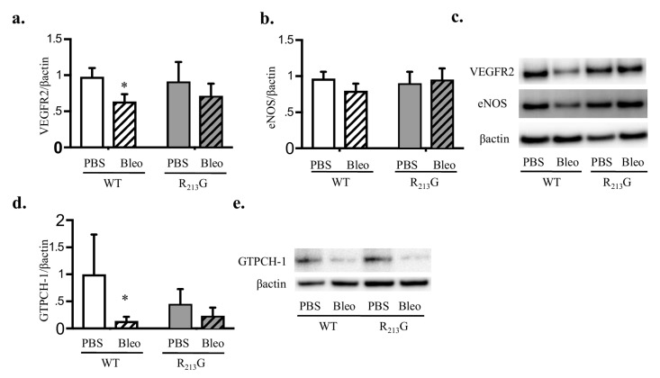 Bleomycin decreased vascular endothelial growth factor receptor 2 (VEGFR2) and guanosine triphosphate <t>cyclohydrolase-1</t> <t>(GTPCH-1)</t> levels in WT mice. VEGFR2, endothelial nitric oxide synthase (eNOS) and GTPCH-1 protein content in the lung were evaluated by western blot analysis in WT and R 213 G mice at 22 days of age after exposure to PBS (10 μL for 9 doses) or Bleomycin (3 units/kg/dose dissolved in 10 μL of PBS for 9 doses). 25 μg lung protein was loaded onto the gels. Representative blots are shown along with optical density normalized to β-actin and expressed relative to WT control mice. ( a ) VEGFR2 ( b ) eNOS ( c ) Representative blots for VEGFR2 and eNOS ( d ) GTPCH-1, ( e ) Representative blot for GTPCH-1 * p
