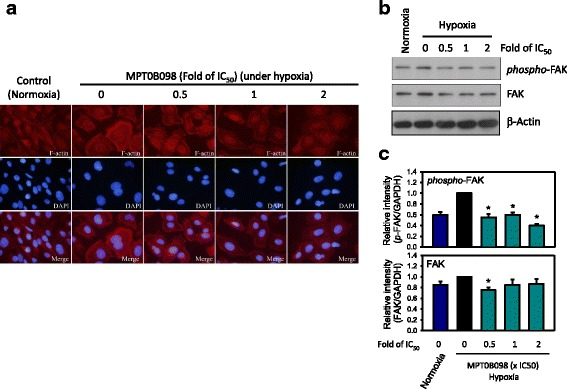MPT0B098 inhibits hypoxia-induced F-actin rearrangement and FAK phosphorylation. a Immunofluorescent analysis of F-actin. OEC-M1 cells were treated with various concentrations, indicated as fold of IC 50 , of MPT0B098 for 18 h under hypoxic conditions, stained with phalloidin to label F-actin (red), counterstained with DAPI (blue), and then observed using an <t>OLYMPUS</t> florescence microscope. b Effect of MPT0B098 on FAK phosphorylation and expression. OEC-M1 cells were treated with various concentrations of MPT0B098 for 18 h.At the end of the drug treatment, cell lysates were prepared and analyzed by SDS-PAGE and Western blot. β-Actin was used as an internal control. c Each bar depicts the mean of the relative intensities of Twist and SNAI2/Slug from three independent experiments (* p