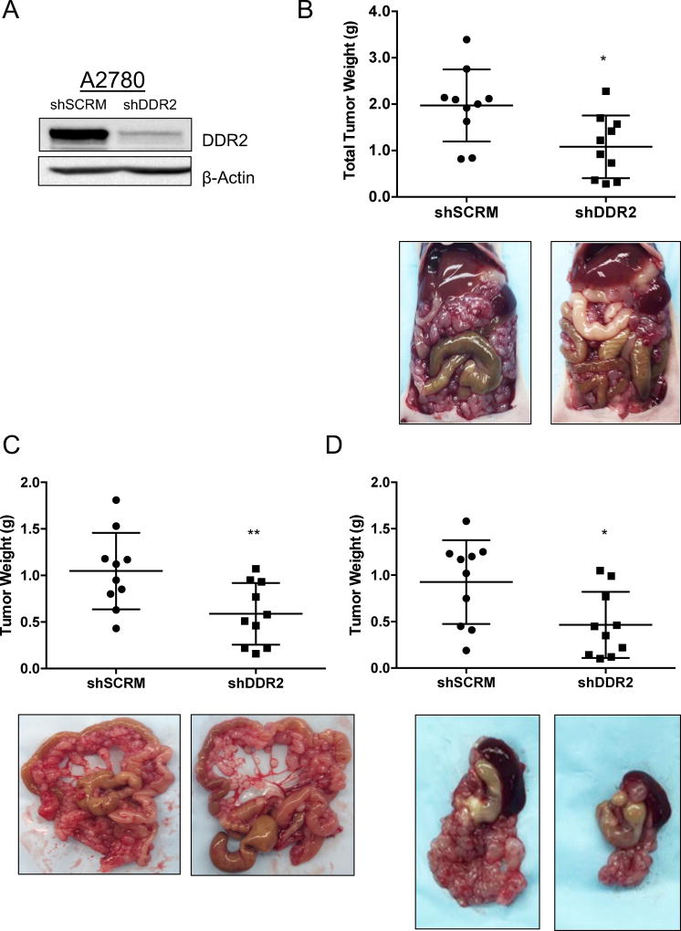DDR2 influences ovarian cancer cell metastasis in vivo A. A2780 cells stably expressing shRNA targeting sequence for scramble control (shSCRM) or DDR2 (shDDR2). Beta-Actin was used as a protein loading control. B–D. Representative images and quantification of Balb/c Nu mice injected IP with 7.5×106 A2780 shSCRM or shDDR2 cells. Tumor burden was assessed at 14 days post injection in the B entire peritoneal cavity C. Mesentary only D. Omentum only. N=10 mice per group. Means and s.d. Unpaired t-test, *P