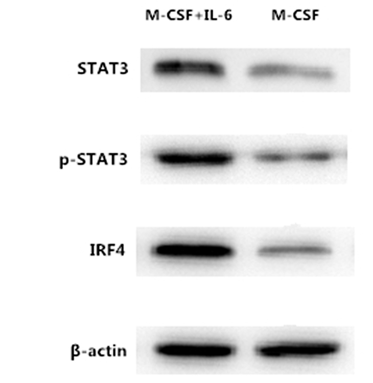 Levels of STAT3, P-STAT3 and IRF4 proteins were increased in the monocytes stimulated by M-CSF and IL-6. Levels of STAT3, P-STAT3 and IRF4 protein in the M-CSF group and M-CSF+IL-6 group were detected by western blotting. β-actin was used as the loading control. The assays were repeated in duplicate. STAT3, signal transducer and activator of transcription 3; pSTAT3, phosphorylated STAT3; M-CSF, macrophage colony stimulation factor; IL, interleukin, IRF4, interferon-regulatory factor 4.