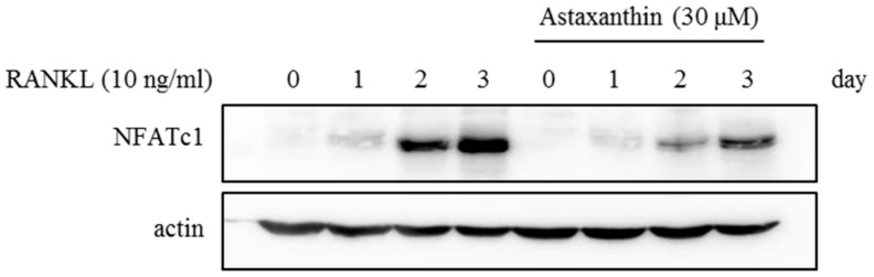 BMMs were pretreated with 0.1%DMSO or Astaxanthin (30 μM) for 1 h and then stimulated with RANKL (10 ng/mL) and M-CSF (30 ng/mL) for the indicated time. Cell lysates were resolved by SDS-PAGE, and western blotting was performed with anti-NFATc1 and actin antibodies as indicated.