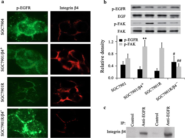 p-EGFR and intergrin β4 expression were assayed by IFA ( a ) and p-EGFR and p-FAK were assayed by western blot ( b ). Integrin β4 over expression induced rapid internalization of surface EGFR to the cytoplasm, while integrin β4 knockdown promoted the expression of EGFR. c The interaction between p-EGFR and intergrin β4 was assayed by immunocoprecipitation with anti-p-EGFR antibody. The first two samples were from SGC7901 cells and the second two samples were from clinic gefitinib-sensitive samples. *P
