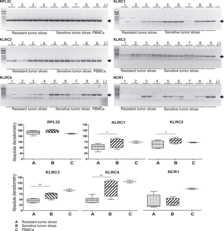 Agarose <t>DNA</t> electrophoresis of polymerase chain reaction (PCR) amplification products from complementary DNA <t>(Cdna)</t> of tumor slices resistant or sensitive to antineoplastic treatment (upper panels), arrows are indicating the expected products. Bands outer the expected size were considered PCR artifacts, and the 1 kb plus DNA ladder was used. Periferal Blood Mononuclear Cells (PBMCs) amplification products were included as positive controls and RPL32 as reference gene. Densitometric comparisons are shown in the lower panels. *Indicates significant differences between groups ( P